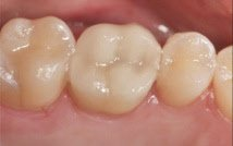 Replacement with porcelain and composite fillings
