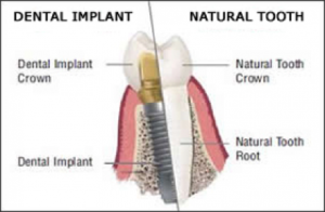 Dental implants, Integrative Dental Solutions
