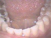 Position on Dental Amalgams (Mercury and Silver Fillings)