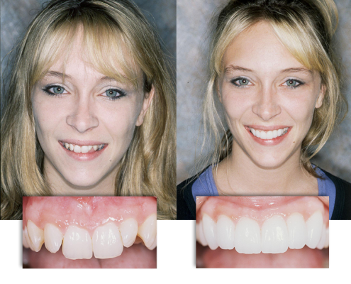 Dramatic before and after transformation at Integrative Dental Solutions