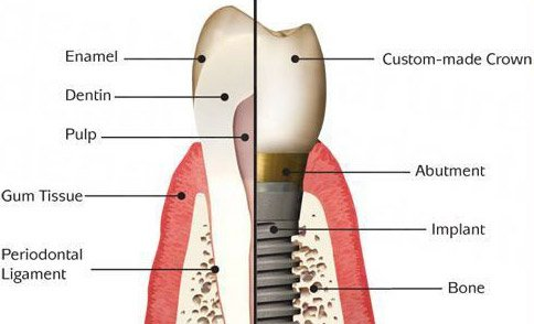 Anatomy of dental implants